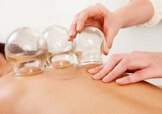 拔罐可以治疗鼻炎吗?鼻炎拔罐拔哪里?
