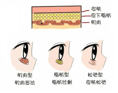 眼睛卧蚕和眼袋的区别图片