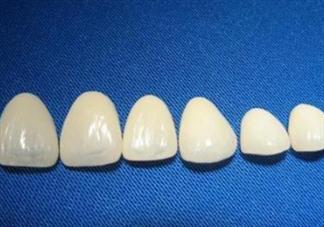 牙齿做贴面多少钱一颗?烤瓷牙可以取下来吗?