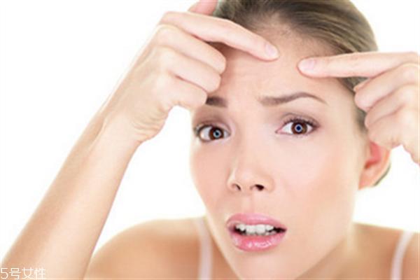 额头毛孔粗大用什么护肤品?额头毛孔粗大和出油有关系