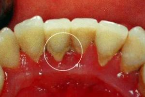 牙结石能自动脱落吗?除了洗牙别无他法