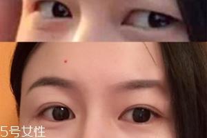内双怎么进化成双眼皮?全是双眼皮贴的功劳