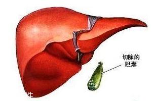 胆囊为什么容易长结石?与个体因素密切相关