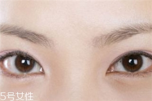 割双眼皮后怎样恢复快?女人不能割双眼皮的时期
