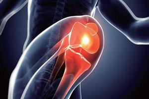 膝骨关节炎有什么症状 需注意5大症状