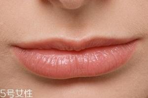 嘴唇干裂是一种病吗?治疗口角炎从改善习惯入手