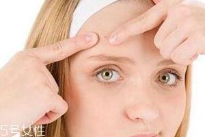 油痘皮适合什么护肤品?控油爽肤水不能少