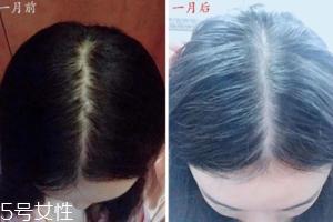 柳屋生发水有用吗?一个月后长出新发