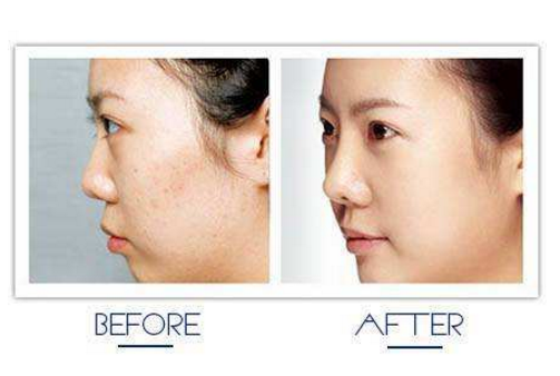 祛痘的日常方法 祛痘护肤产品推荐
