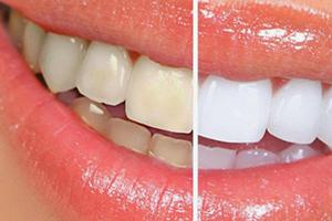 牙贴和美牙仪哪个好?牙贴和美牙仪效果比较