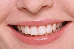 洗牙粉能把牙洗白吗?洗牙粉有效吗