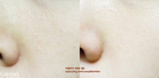 30岁用什么精华液比较好 30岁护肤的重点是什么