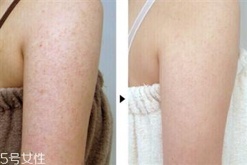 去鸡皮肤的身体乳牌子有哪些 适合鸡皮肤的身体乳