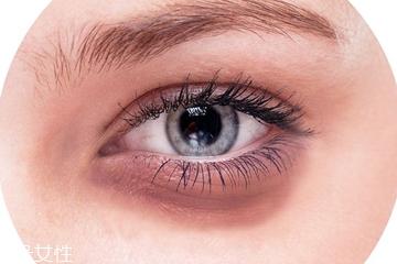 红色黑眼圈怎么遮瑕 红色黑眼圈用什么颜色遮瑕