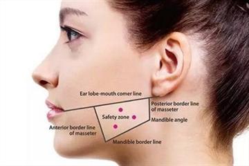 瘦脸针适合哪种脸型 瘦脸针适合多大年纪打