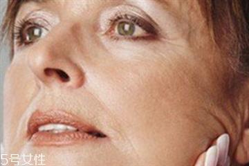 皮肤松弛怎么恢复 这样预防皮肤松弛