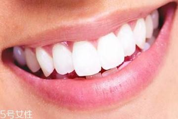 牙膏洁净剂有哪些 2种成分会加重口腔溃疡