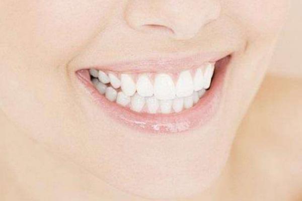 生活中牙齿美白方法