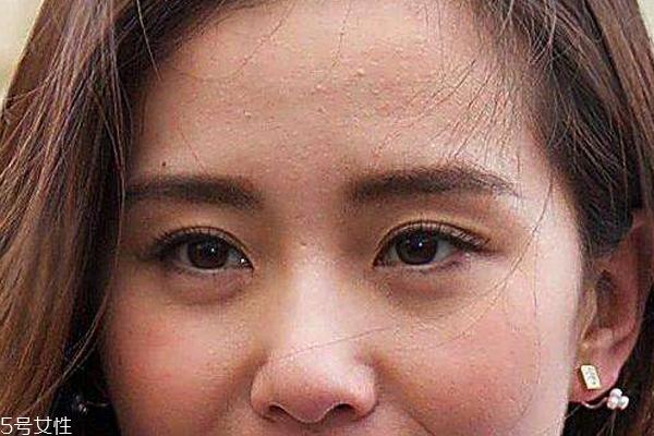 痘痘位置代表哪里不健康 嘴角好长月经痘