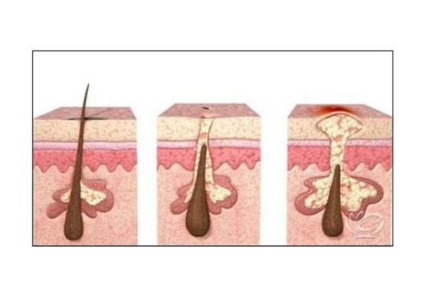 头发白是甚么启事惹起的 不能治愈的鹤病发