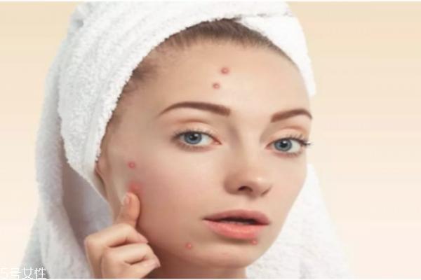 化妆品保质期一般是多久 过期的就不要用了