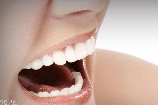 女人变老有什么特征 牙齿容易变脏也是征兆