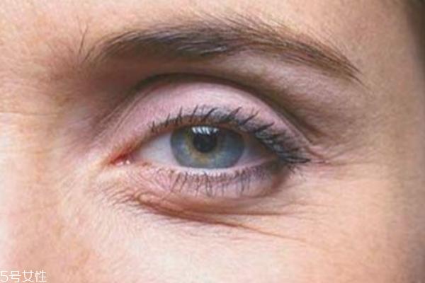 鱼尾纹打玻尿酸管事吗 快速秒杀眼部皱纹的方法