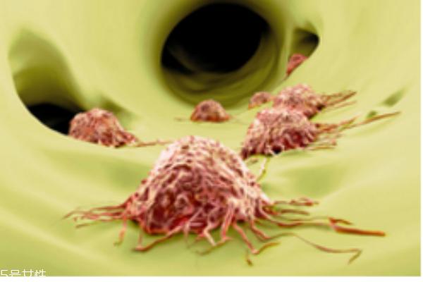 常见癌症有哪些 生活习惯易引发癌症