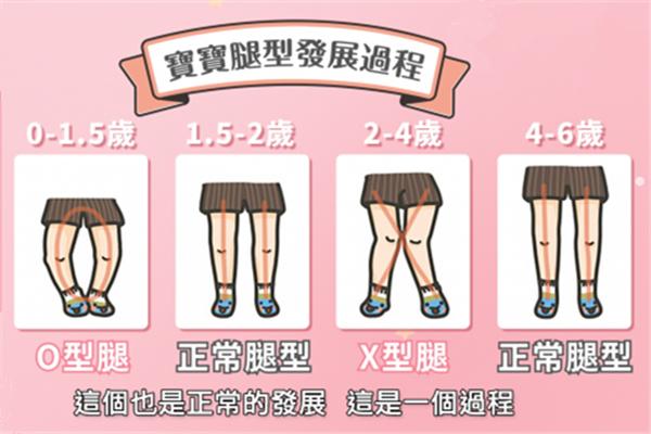 宝宝腿型变化图解 宝宝腿型发展过程图