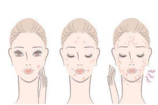 去痘印最快的方法 去痘印的护肤品推荐