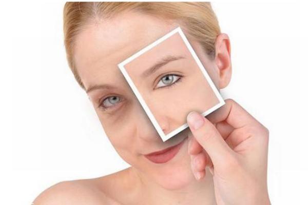 冬天皮肤干燥用什么护肤品好 冬季保湿护肤品排行榜