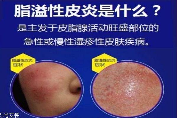 脂溢性皮炎症状 怎么预防