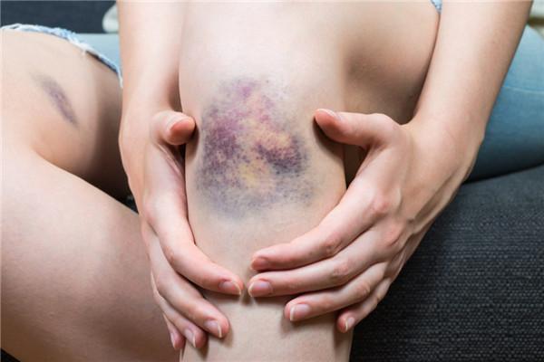 哪些人不能按摩 14种病症禁止按摩