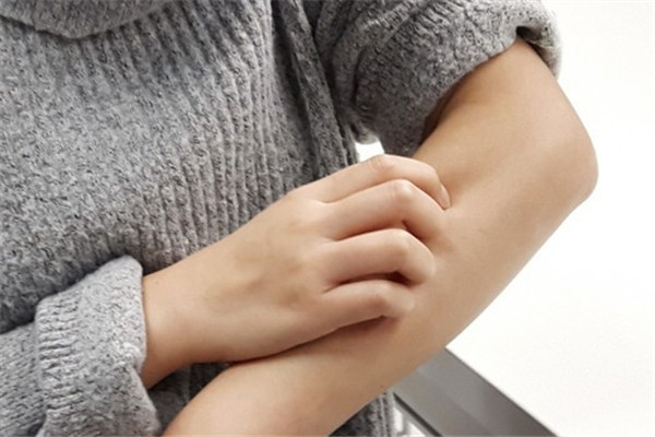 冬季湿疹怎么预防 多吃含锌食物