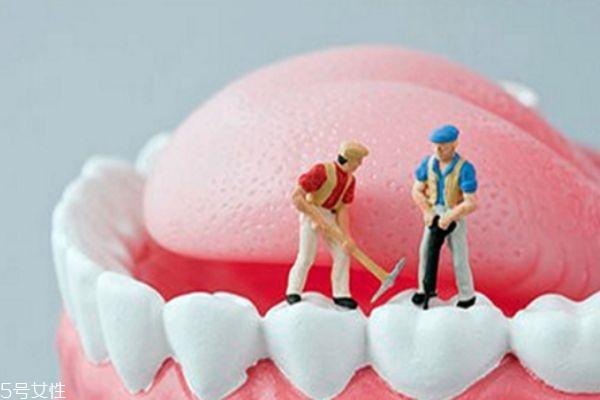 洗牙后的注意事项 洗牙对身体有伤害吗