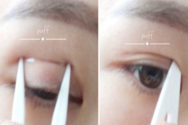 肿眼泡适合什么双眼皮贴 选择双眼皮贴小技巧