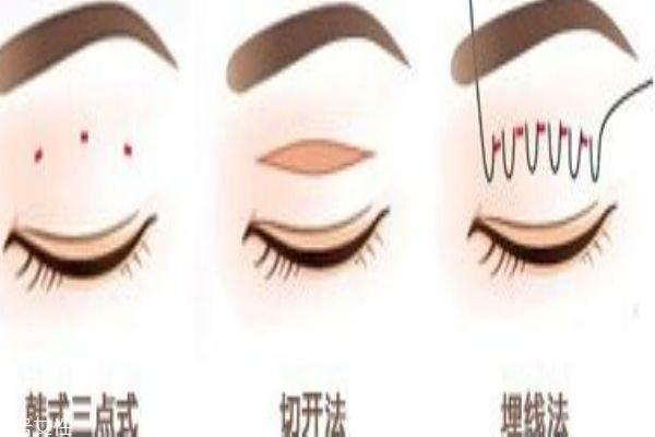 韩式三点和埋线的区别 你适合做什么样的
