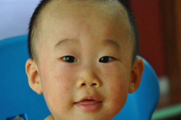 幼儿急疹的症状及治疗 家长们要注意