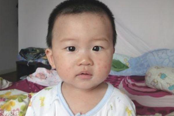 幼儿急疹发烧怎么办 幼儿急疹典型的特点