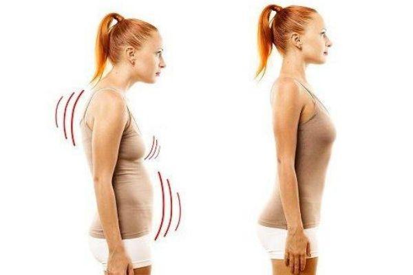 驼背矫正方法