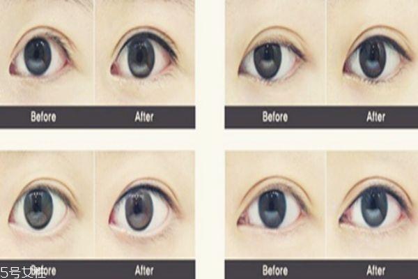 纹眼线是永久的吗 理论上是的