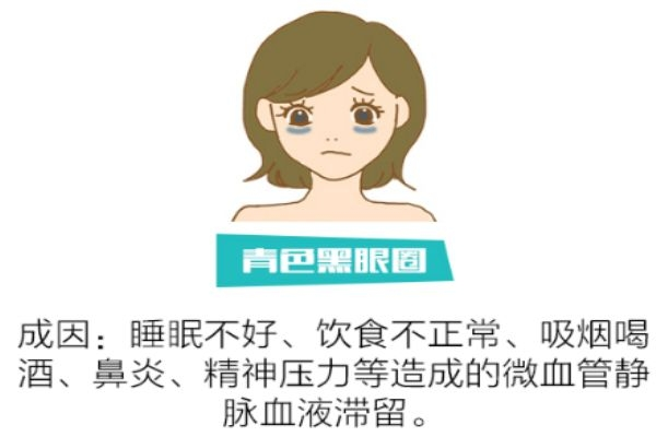 如何分辨黑眼圈类型 找对类型对症下药