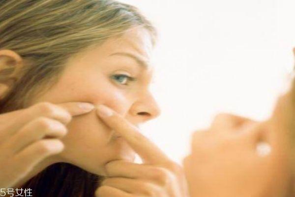 激素脸的症状 三种症状检测你是否是激素脸