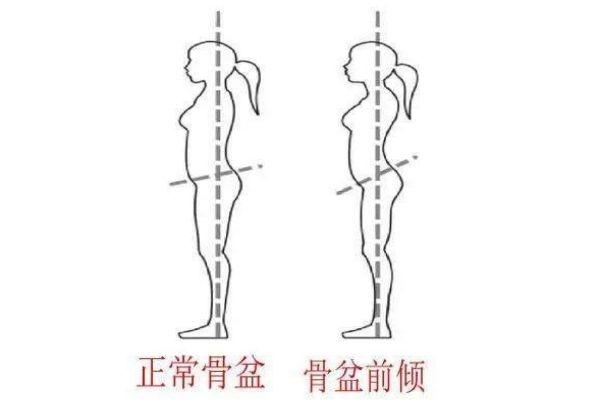 骨盆前倾会导致腿粗吗 骨盆前倾会导致下身肥胖