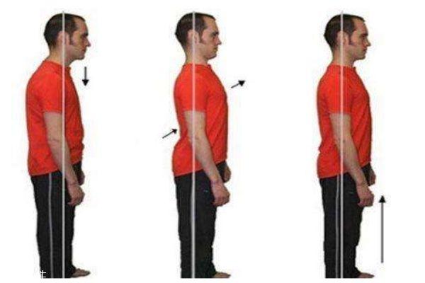 骨盆前倾的症状 骨盆前倾的自测办法