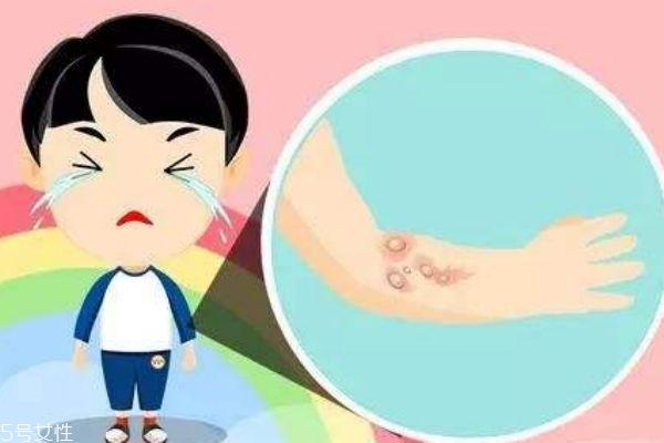 烫伤后起水泡怎么处理 烫伤后起水泡多久能好