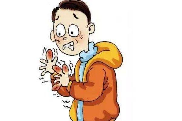 手上的冻疮怎么止痒 可以用泡盐水止痒