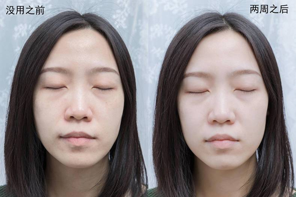 lg美容面罩有用么 lg美容面罩2周使用效果