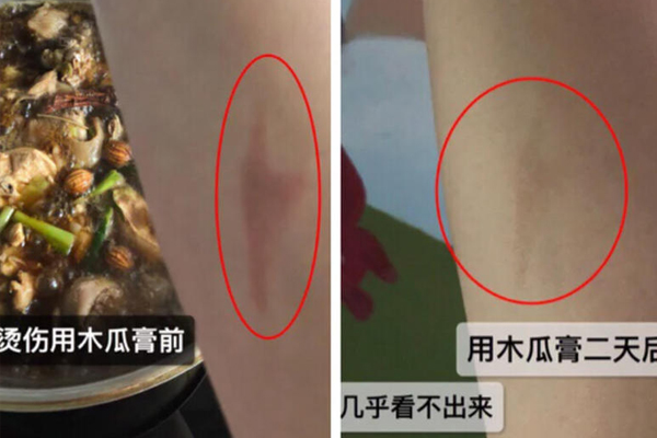 澳洲木瓜膏能治烫伤吗 澳洲木瓜膏能止痒吗