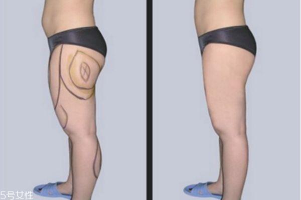 大腿环形吸脂多久完全消肿 抽脂瘦腿有哪些后遗症